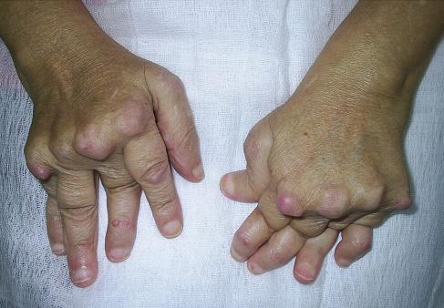 ce medicamente pot ameliora durerile articulare