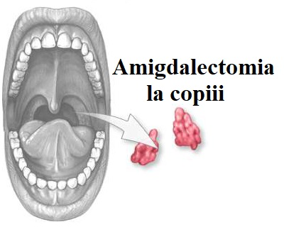 Amigdalectomie și dureri articulare. Dureri articulare după amigdalectomie