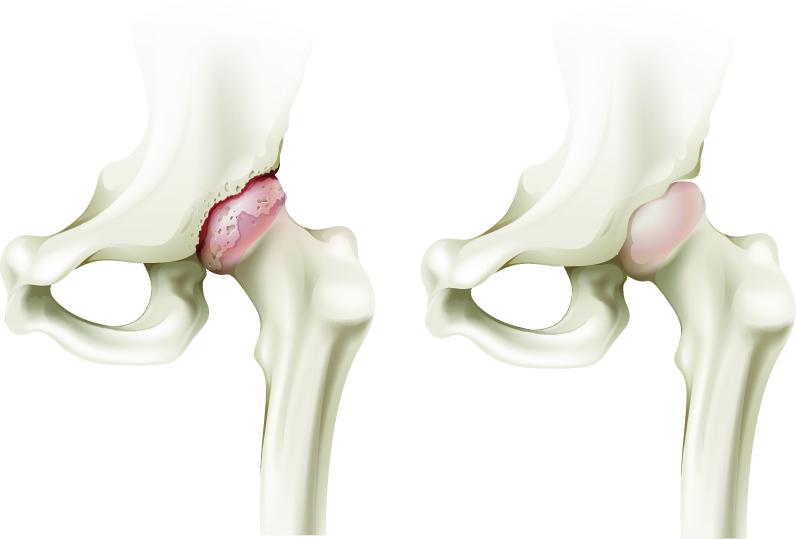durere fesieră care radiază spre articulație unguentul articulațiilor tendoanelor