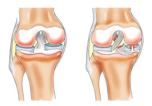 imunitate și dureri articulare ce este umflarea genunchiului