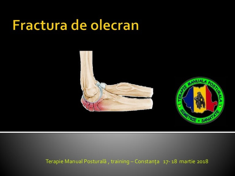 bloc de artroză a articulației cotului