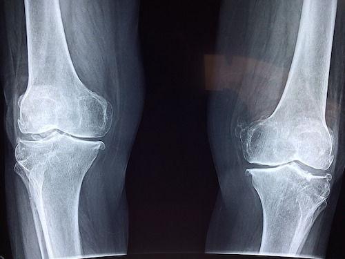 dureri de șold în mușchii șoldului de ce îmi doare articulațiile