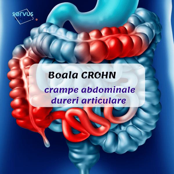 Boala Crohn și dureri articulare ce calmante să ia pentru dureri articulare