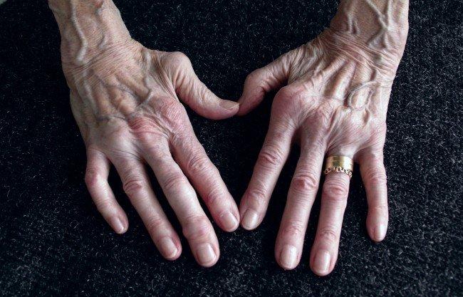 leac pentru artrita articulațiilor degetelor