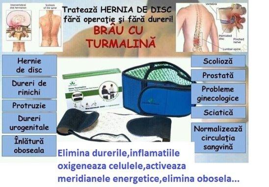 boli reumatologice ale articulațiilor