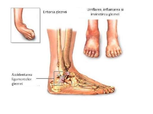 inflamația nervului în articulația gleznei glucozamină și condroitină sau artra