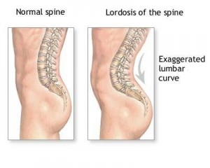 tratarea coloanei vertebrale și a anastaziei articulațiilor semenova după înlocuirea articulației șoldului în durerea inghinală