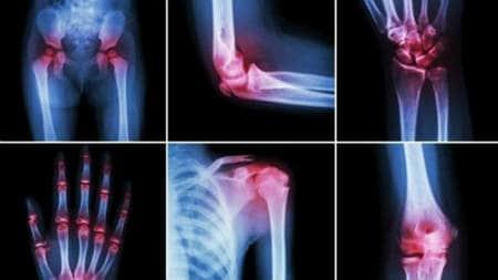 cauzele și tratamentul articulațiilor