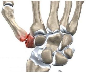 durere în articulația palmei