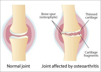 ce este artroza articulațiilor intervertebrale cum se poate vindeca artrita degetului mare