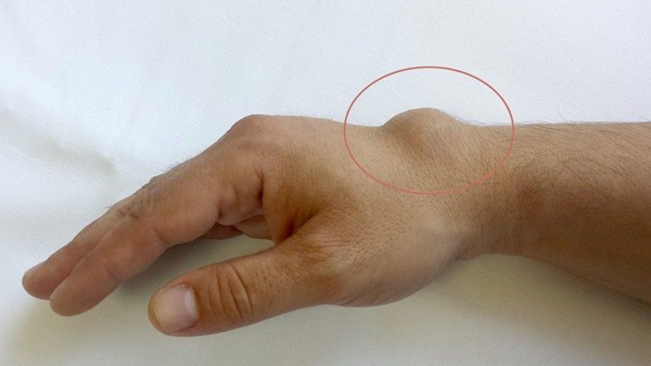 medicament pentru durerile articulare ale genunchiului