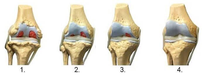 tratamentul entorsei umărului dureri severe cu artrita articulației șoldului