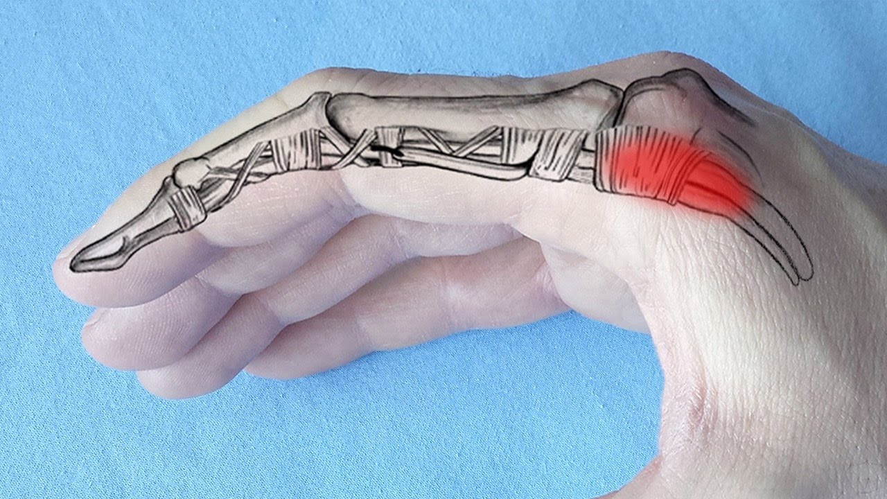 umflarea leziunilor la genunchi