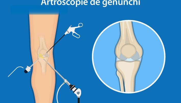 conduce inflamația genunchiului dureri articulare după tragere în sus