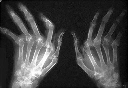 boală articulară numită greață și dureri articulare