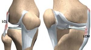 cum să tratezi leziunile ligamentelor la genunchi