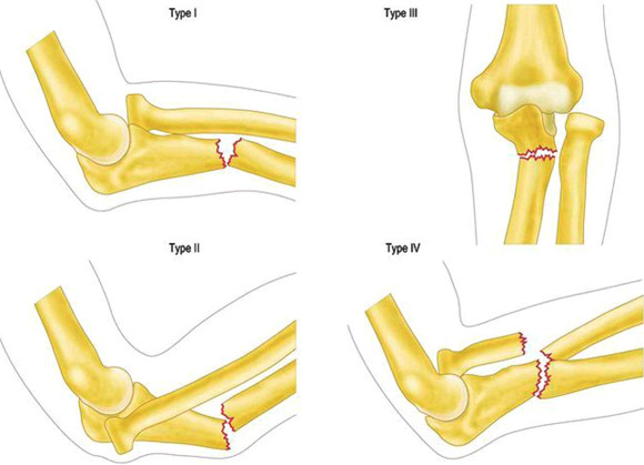 Luxatie de cot | Consultatie Ortopedie