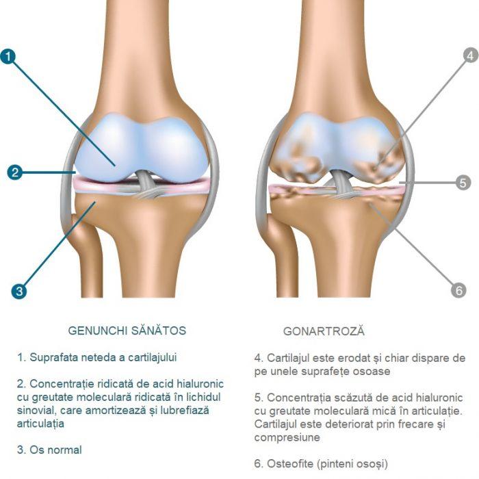 Artroza Gleznei - Ortopedie ArcaLife