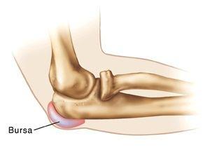 tratament cu artroză crovertebrală c5