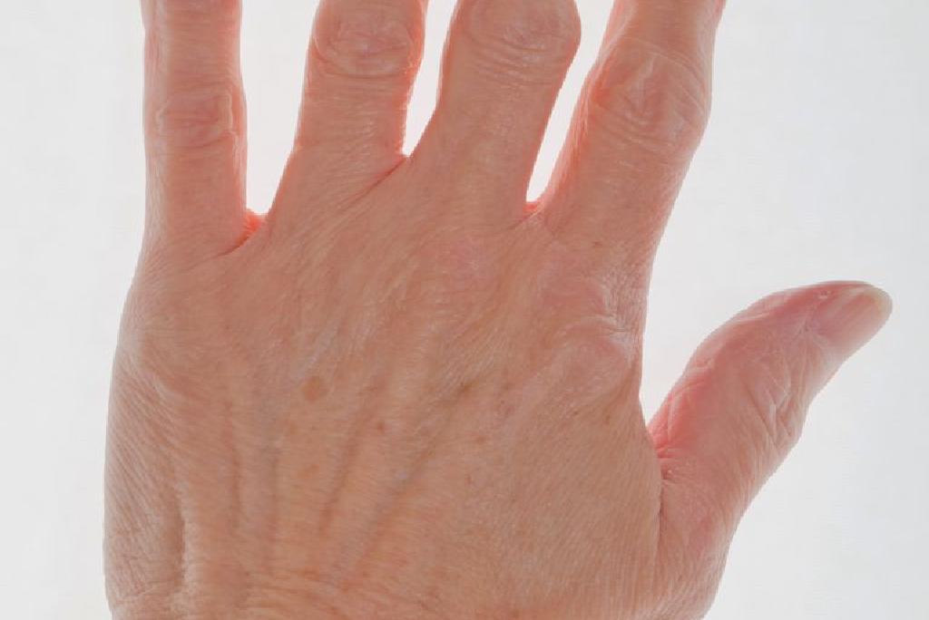 artrita precoce a articulațiilor degetelor
