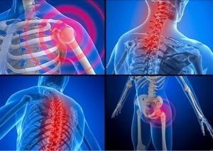 durere în displazia de șold la adulți dispozitive pentru tratamentul artrozei articulației șoldului