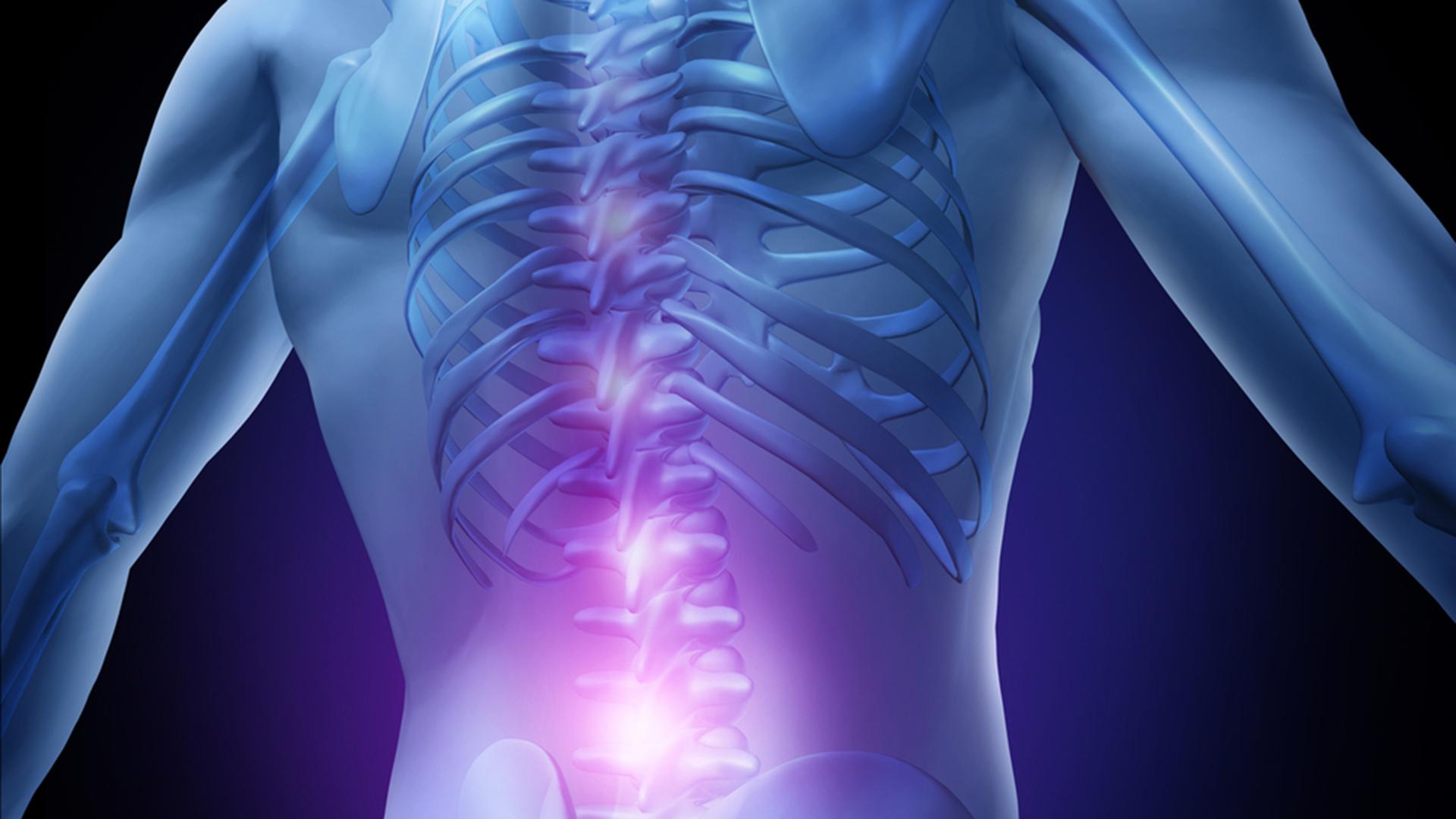 deformarea consecințelor tratamentului artrozei
