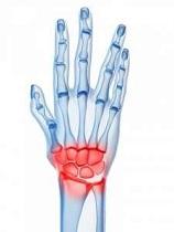 deteriorarea discului la încheietura mâinii plângeri de boli articulare