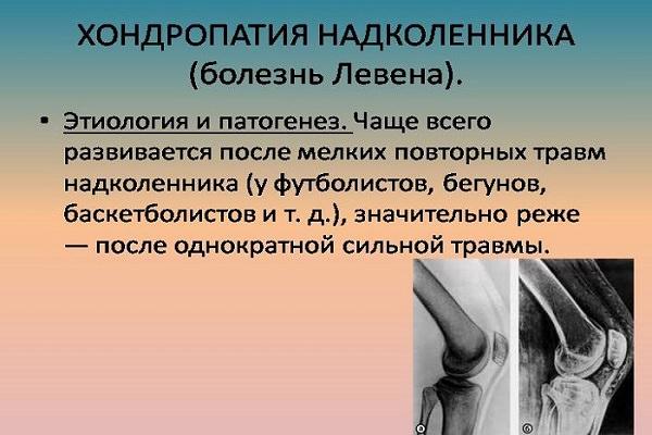 hp bro pentru dureri articulare leziuni la nivelul piciorului