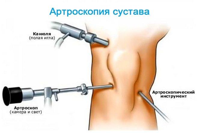 durere în articulațiile întregului corp și mușchi tratament de anchiloză articulară