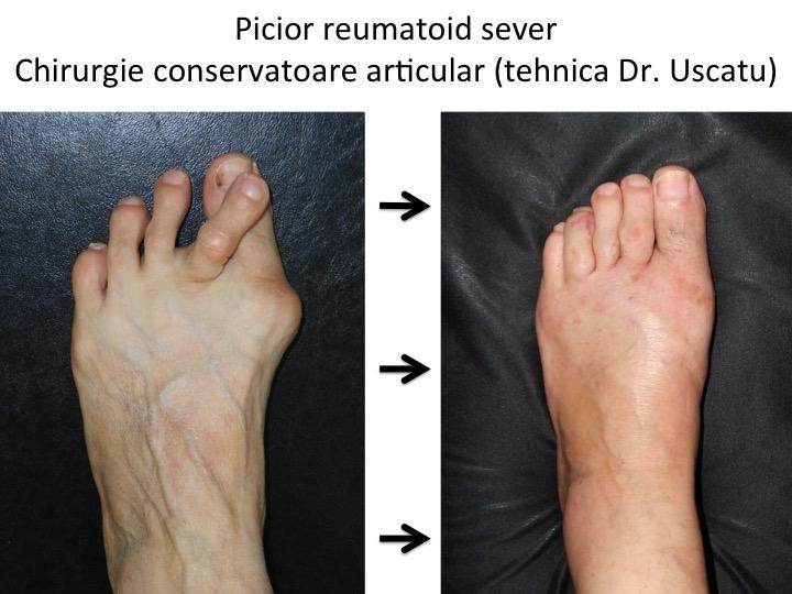 durere în articulațiile picioarelor de către un reumatolog