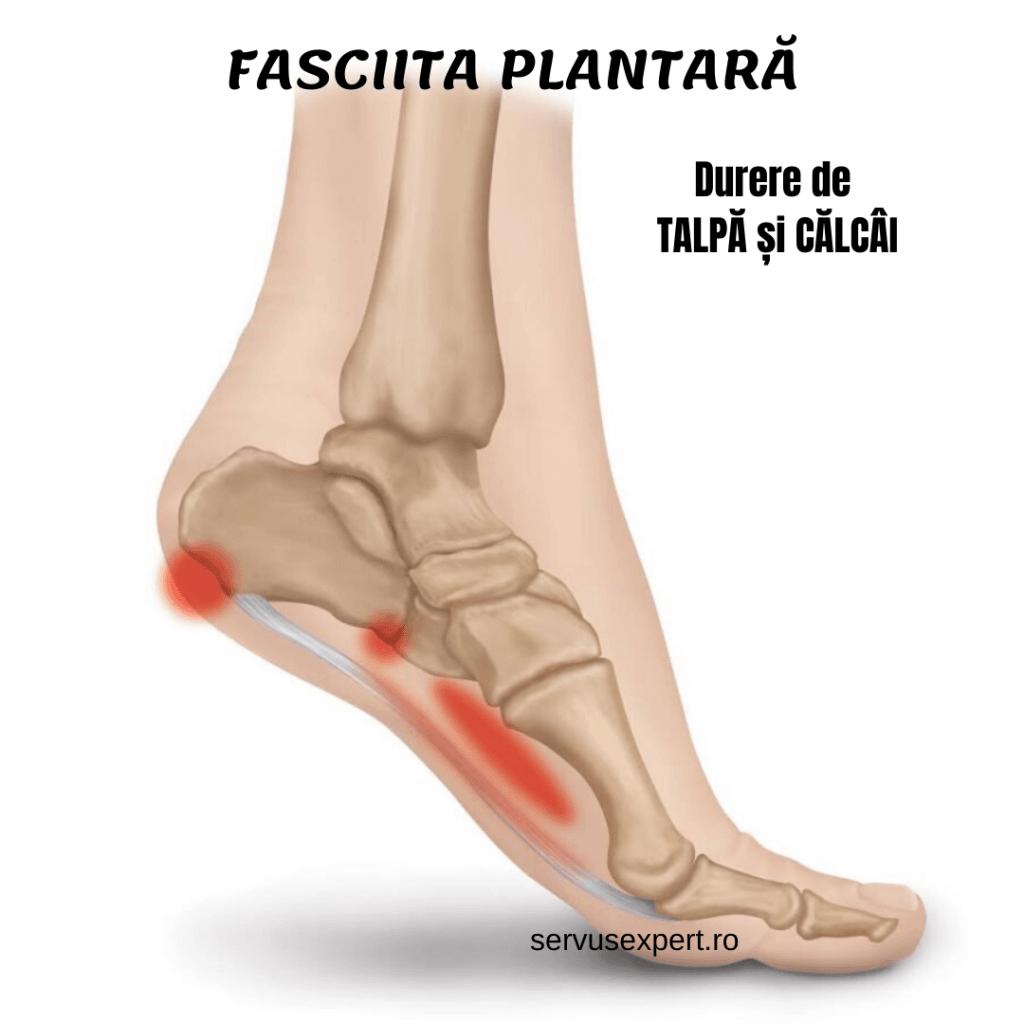 dureri articulare după fracturarea călcâiului