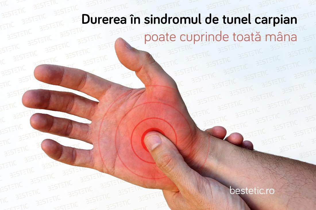 dureri la încheietura mâinii cauzează