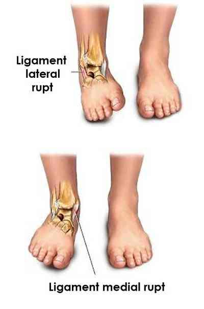 ruperea ligamentelor gleznei unguentele din osteochondroza nu se încălzesc