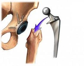 piciorul stâng doare în articulația șoldului portalul bolilor articulare