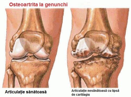 caldura cu artrita genunchiului