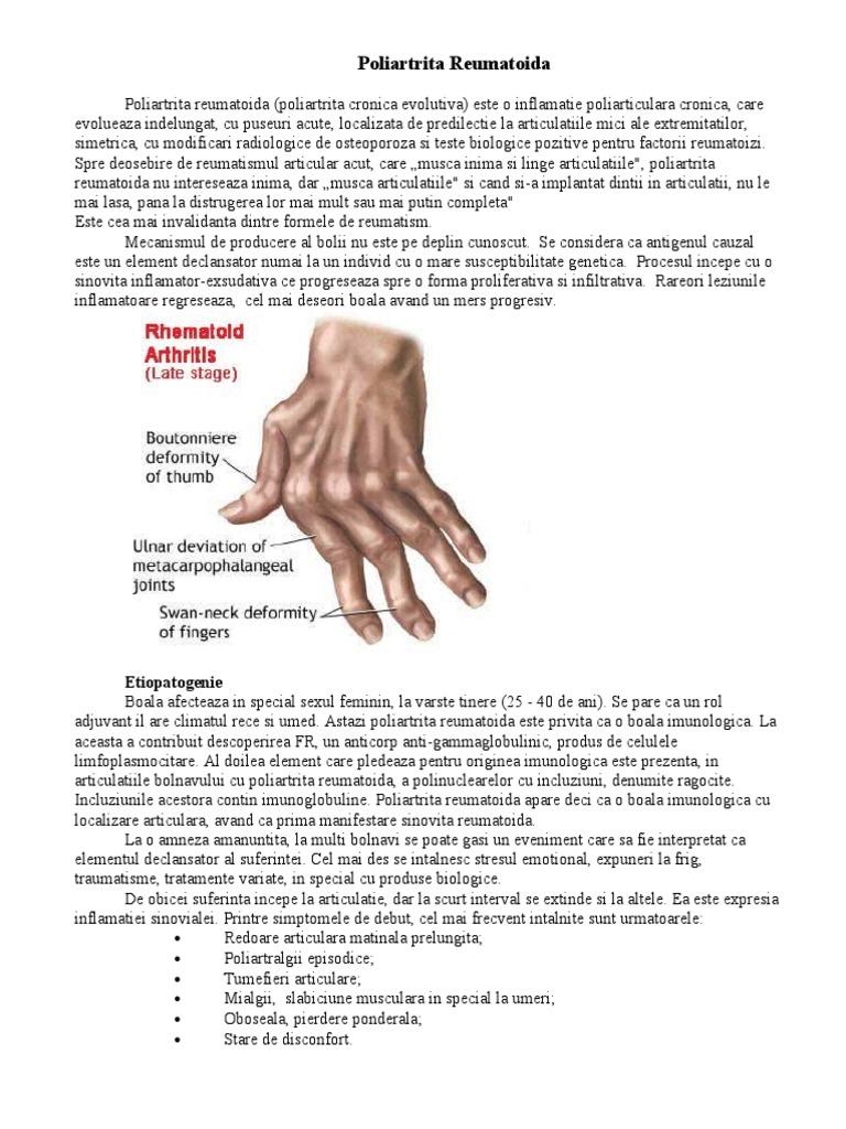 a fost tratată artrita reumatoidă anterioară