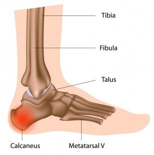 ce medicamente să luați cu artroza umărului articulațiile genunchiului arde