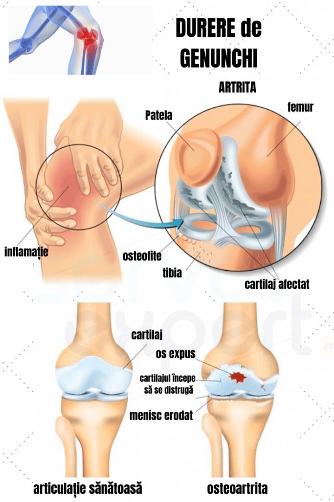 Picior amortit la genunchi, de mai sus, mai jos de genunchi, ce să fac?