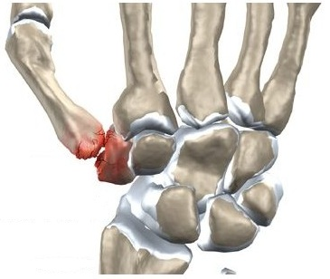 durere în articulația șoldului decât amețire Teraflexul ajută la artroza genunchiului?