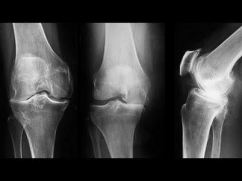 artroza genunchiului și medicamente pentru tratament