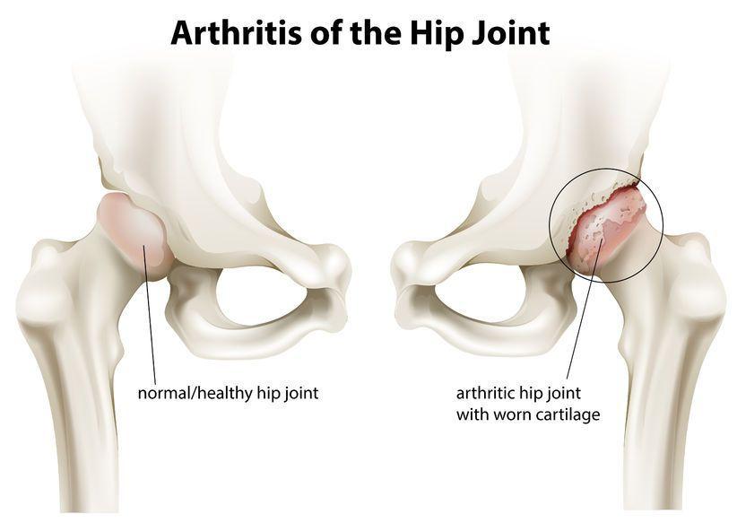 pentru durere în osteoporoză la nivelul articulației șoldului
