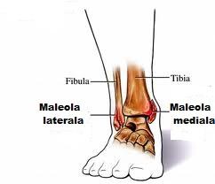 fracturi ale tratamentului articulației gleznei modificări ale genunchiului în artrita reumatoidă