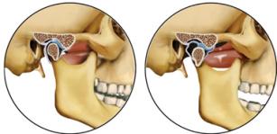 bursită în tratamentul articulației cotului