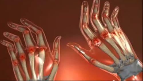 homeopatia tratează artrita reumatoidă condroprotectori pentru artrita degetelor de la picior