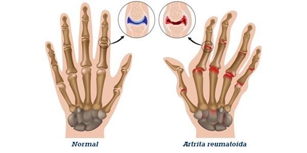 homeopatia tratează artrita reumatoidă artritică medicină articulară Preț