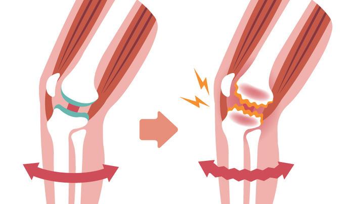 unguent stinky pentru articulații dureri de genunchi din guta