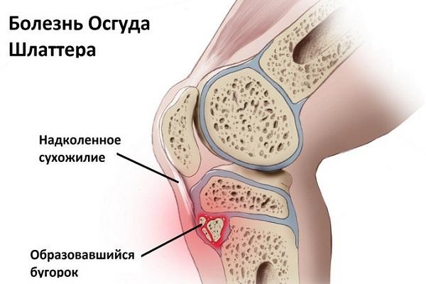 comprese pentru durere în articulația genunchiului tratamentul durerii cotului stâng