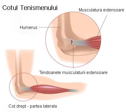 leziuni și boli ale articulației cotului