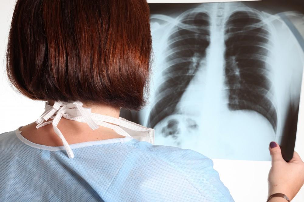reumatologie a bolilor articulare cum să ameliorezi durerile articulare noaptea