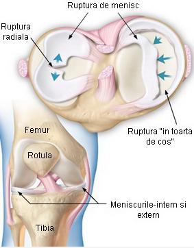 cartilaj format din țesut conjunctiv